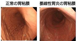 正常の胃粘膜と萎縮性胃炎の粘膜